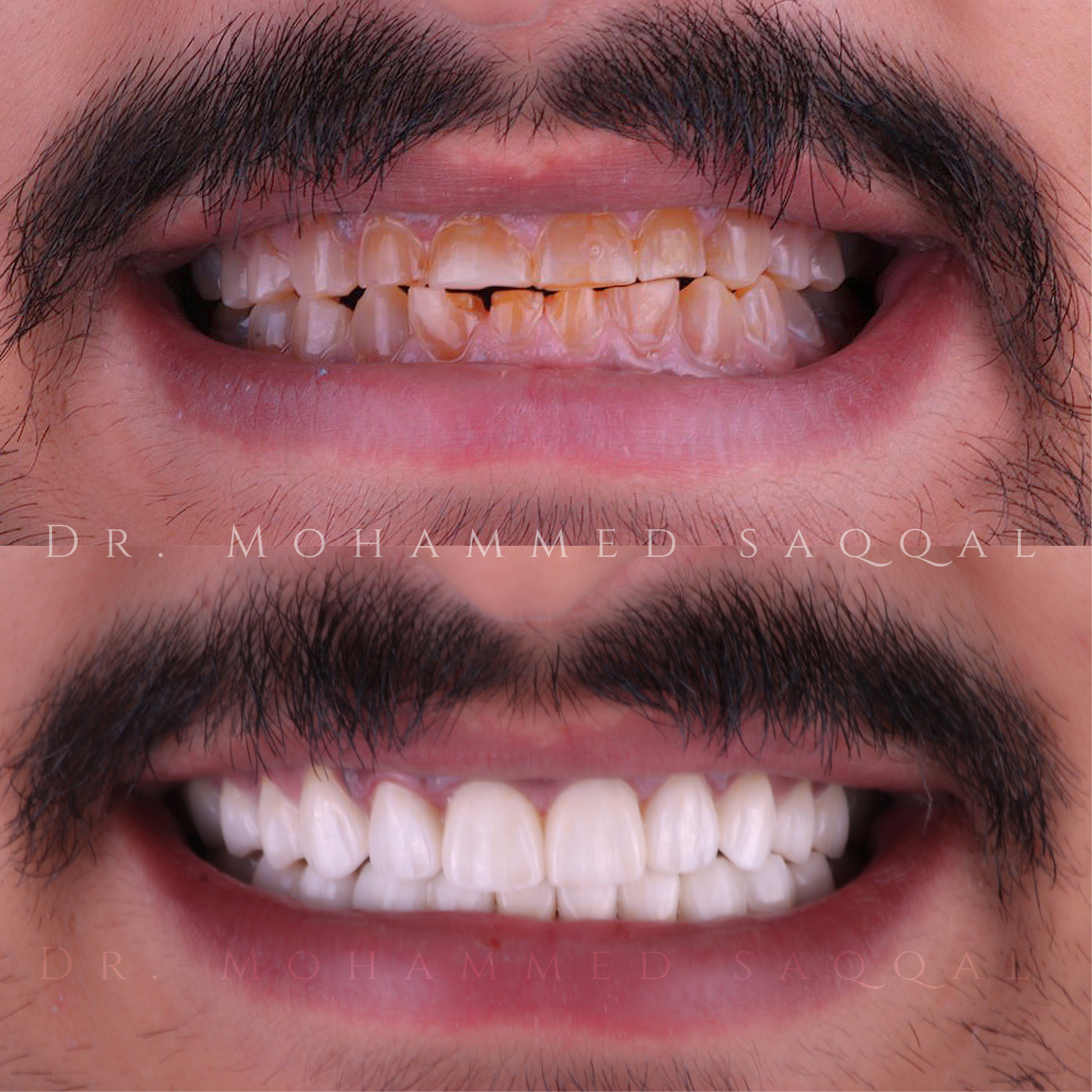 Zircon crowns layered by Emax porcelain BL5